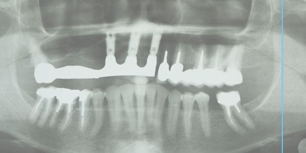 implantologia-odontoiatria-renate