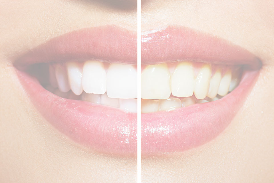 sbiancamento-dentale-nello-studio-dentistico-brianteo